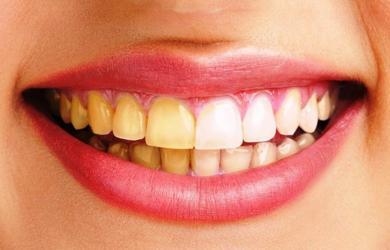 4 loại thực phẩm càng ăn càng khiến răng ố vàng, cố tẩy trắng cũng vô ích